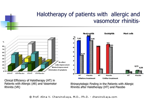 Halotherapy of Patients with Allergic and Vasomotor Rhinitis